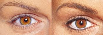 Beauty Cosmetic Ultraschall